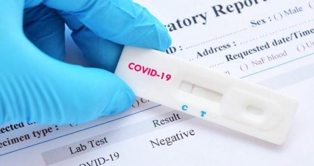 Antijen testleri artık ücretsiz
